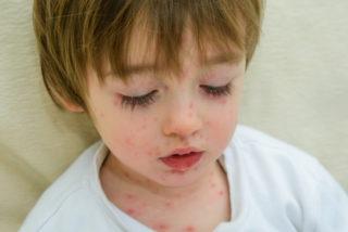 vacuna contra la varicela en Jalisco